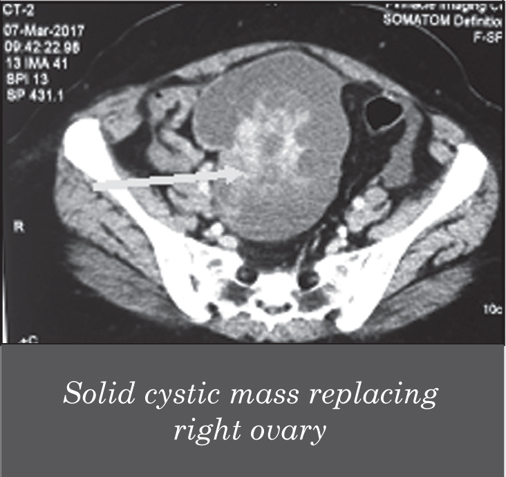 ovarian cancer on ct scan)
